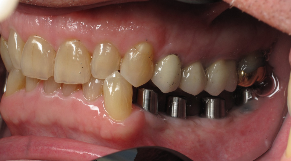 patient-with-dental-implants-in-victorville.png